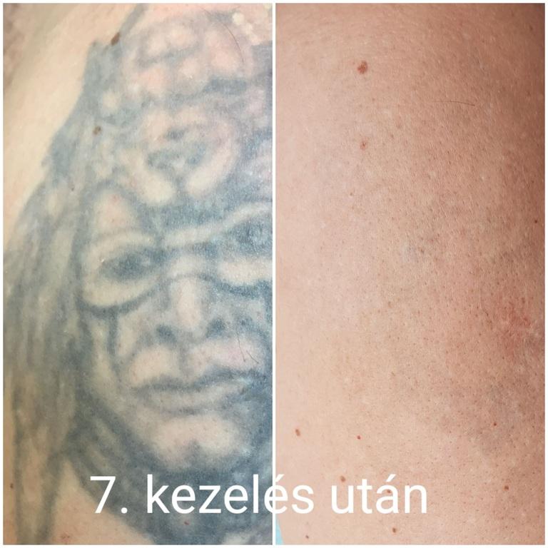 tetoválás 7 lézeres kezelés utáni állapot
